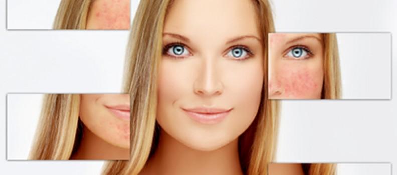 Какво да правим, когато козметичната процедура се обърка? Част II