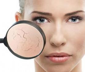 Съвети за суха кожа